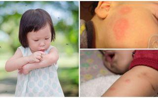 Moskito beißt auf die Haut eines Erwachsenen oder Kindes