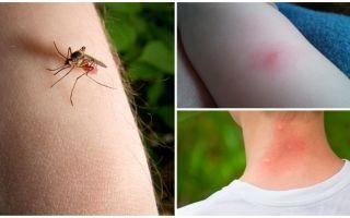 Was ist der Unterschied zwischen einem Mückenstich und einem Insekten- oder Zeckenbiss?