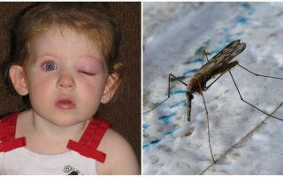 Was tun, wenn ein Kind nach einem Mückenstich ein geschwollenes Auge hat