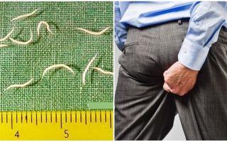 Symptome und Behandlung von Madenwürmern bei Erwachsenen
