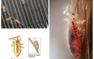 Inkubationszeit von Läusen und Nissen beim Menschen