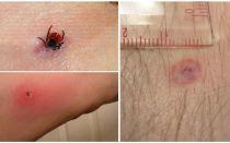 Symptome und Behandlung eines enzephalitischen Zeckenbisses beim Menschen