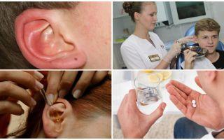 Zecke im Ohr einer Person: Symptome und Behandlung