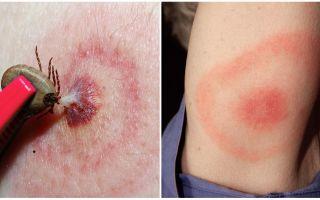 Was ist Lyme-Borreliose, seine Symptome, Behandlung und Foto