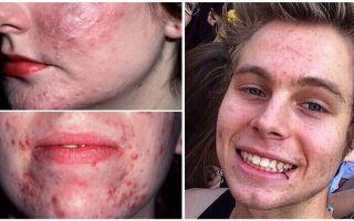 Behandlung von Demodikose im Gesicht einer Person