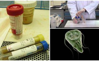 Wie man Kot auf Giardia, Methoden der Analyse richtig übergibt