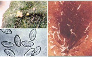 Wie sehen Pinworm-Eier aus?