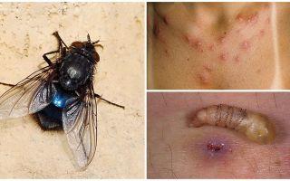 Eine Fliege, die Larven unter menschliche Haut legt