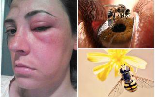 Was ist, wenn eine Biene in das Auge gebissen wird und es angeschwollen ist?