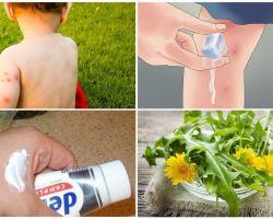 Wie man ein Kind sticht Mückenstiche