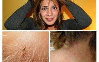 Prävention von Pediculosis und Krätze