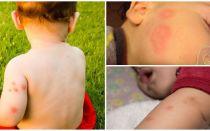 Mittel für Kinder nach Mückenstichen