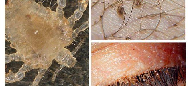 Pubic Lice Symptome und Behandlung