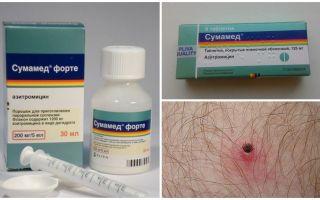 Antibiotika nach einem Zeckenstich