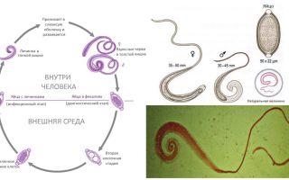 Symptome und Behandlung von menschlichen Krallen