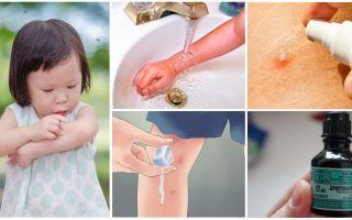 Wie und was zu behandeln Mückenstiche bei einem Kind