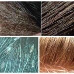 Läuse im Haar