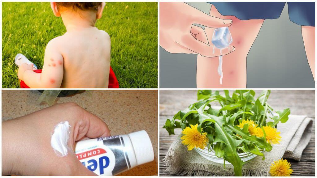 Traditionelle Rezepte zur Behandlung von Mückenstichen